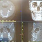 歯科用CT導入しました。~藤沢・辻堂・茅ヶ崎・平塚で矯正するなら、ひだ矯正歯科~